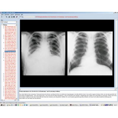 CD: El corazón, sistema respiratorio y circulatorio humano